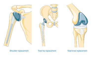 Replacement_surgery_-_Shoulder_total_hip_and_total_knee_replacement_--_Smart-Servier_(cropped)